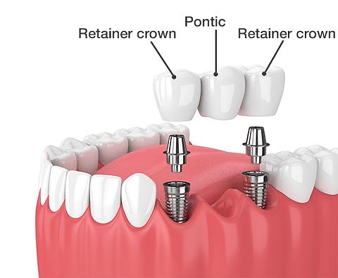 Dental-Bridge-Implants.png