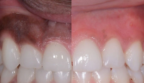 Gum-Depigmentation-1200x507_edited.jpg