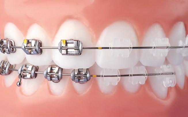 metal-braces-ceramic-barces