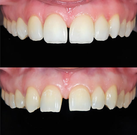 Be-100-Positive-about-Getting-Veneers.jp