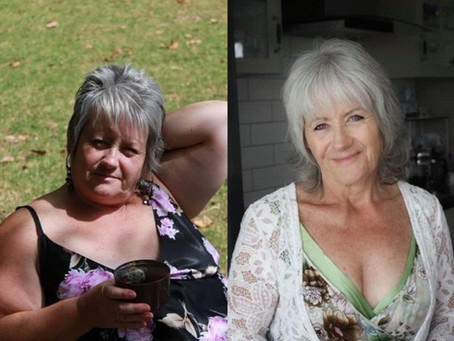 Kiwis combating Covid calories with gastric band hypnosis