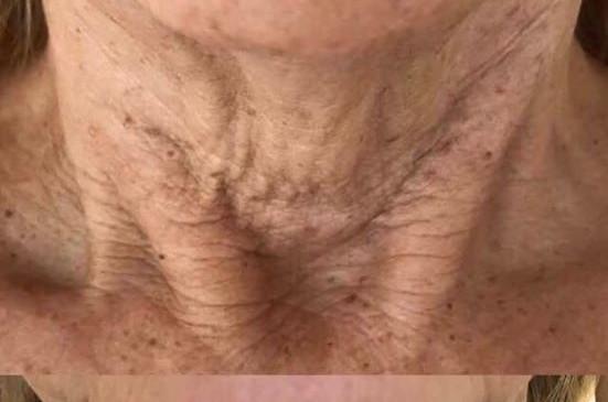 Fibroblast Treatment neck
