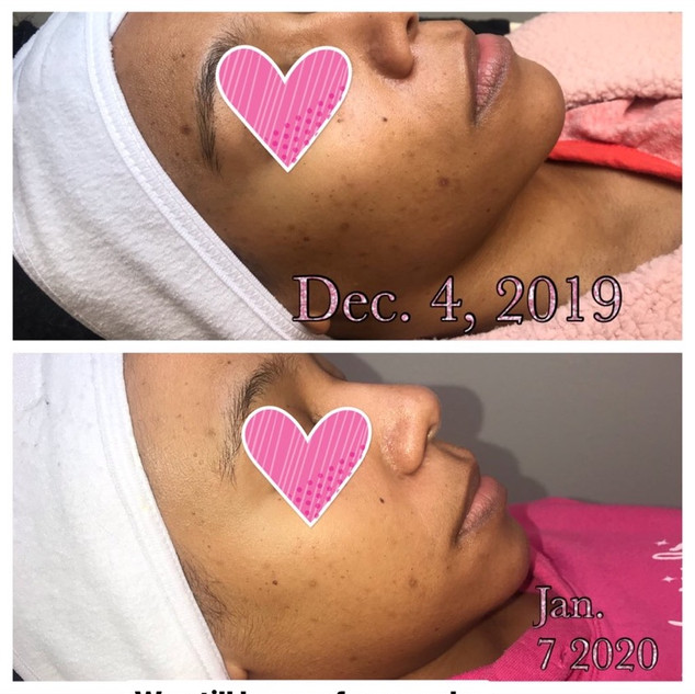 Client booked the weekly chemical peel series