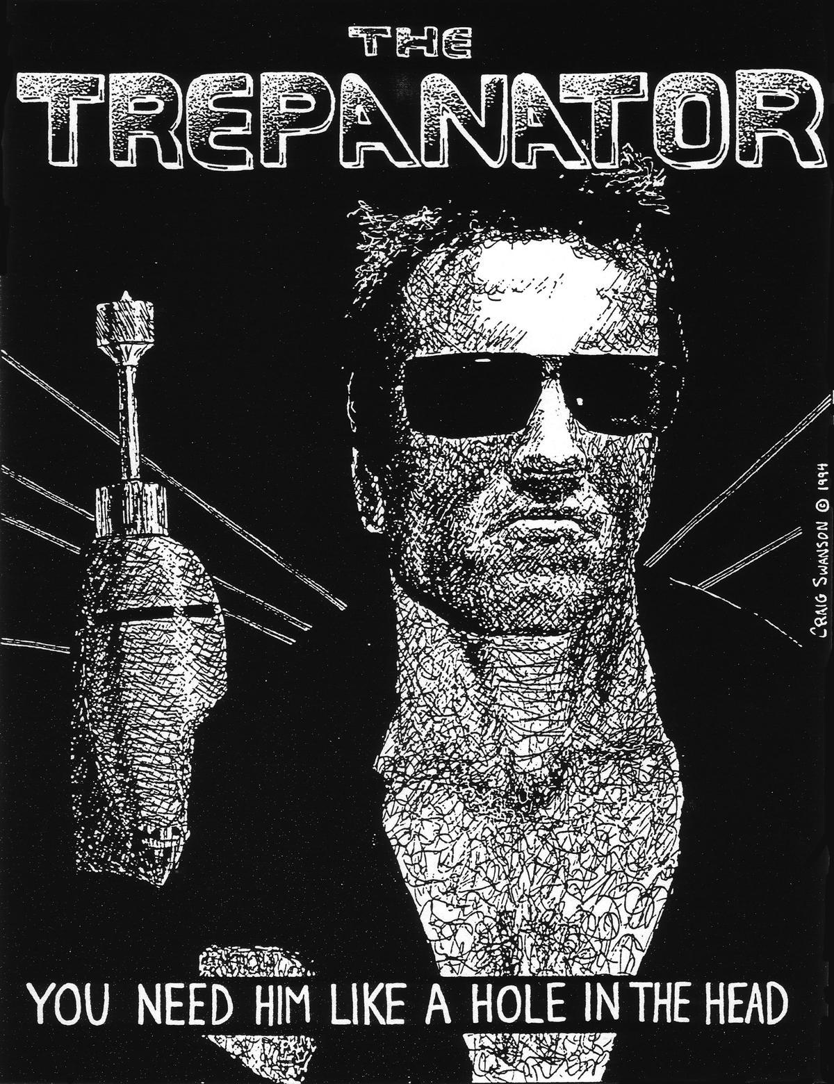 The Trepanator