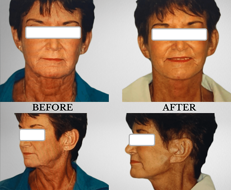 KFP - BEFORE AND AFTER FACELIFT RESULTS.png