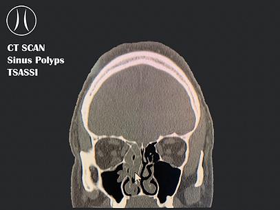 CT SCAN - POLYPS - Texas Sinus, Allergy, Snoring & Sleep Institute