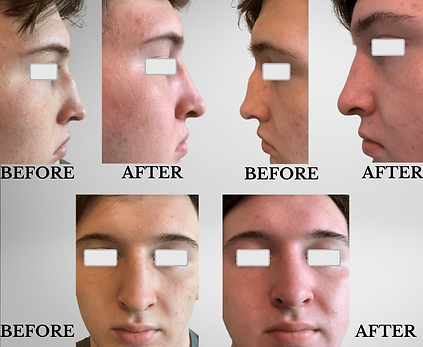 KFPI - BEFORE & AFTER RHinoplasty.png