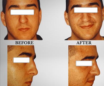 KFPI - rhinoplasty dorsal reduction