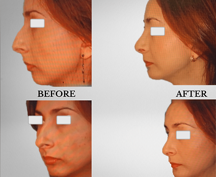 KFPI - Rhinoplasty & Chin Implant Before & After