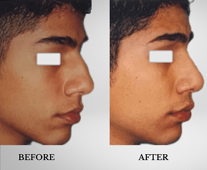 KFPI - rhinoplasty before & after pat 3