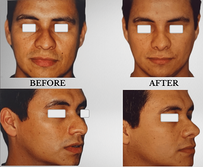 KFPI - Challenging Rhinoplasty Before & After