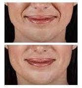 naso labial folds.jpg
