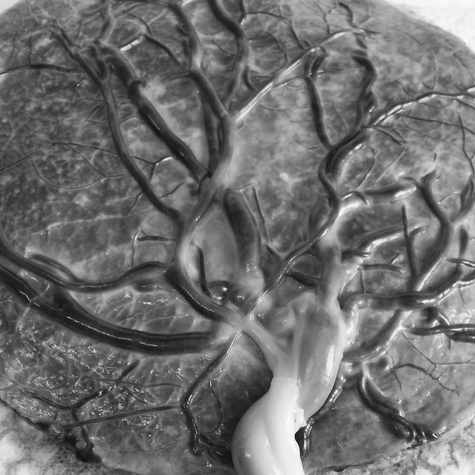 Placenta tree of life