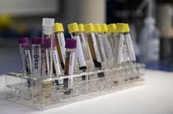 Toxicología Clínica / Emergencias