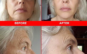 Face Yoga before and after pic