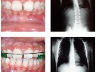 Dentes e Postura