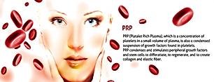 PRP-treatment.png