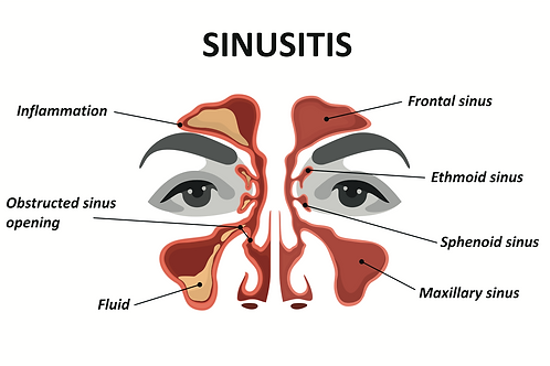Nose and Sinusitis