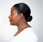 Seattle Kybella expert neck jowl fat difficult area below chin