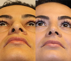 Rhinoplasty Before & After F07