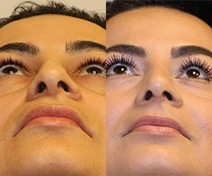 Before and after rhinoplasty and septoplasty
