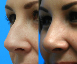 Rhinoplasty Before & After F10