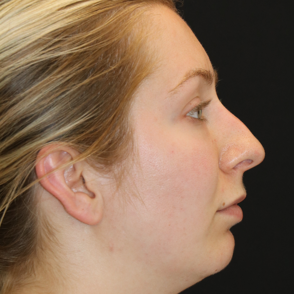 Seattle, WA - Filler Nose Job A young woman before non-surgical rhinoplasty