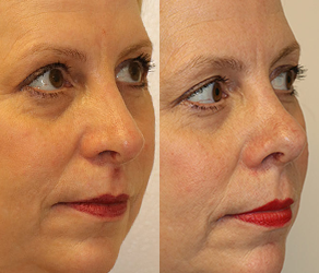 Rhinoplasty Before & After F12