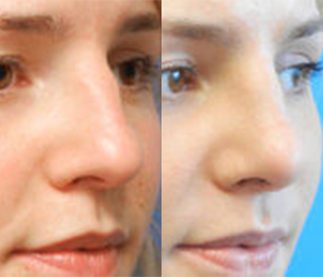 Rhinoplasty Before & After F11