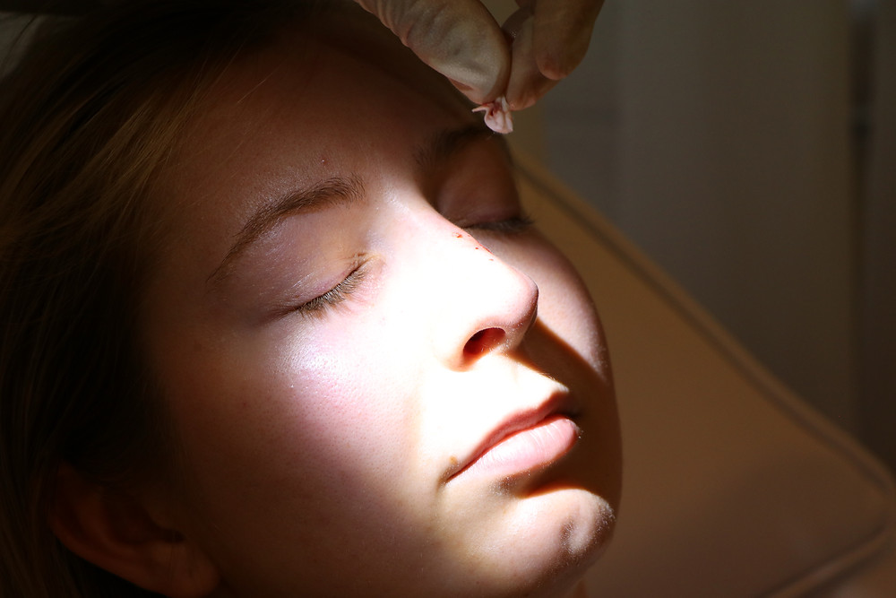 SEATTLE, WA - Rhinoplasty Expert A young woman who has had a non surgical nose job.