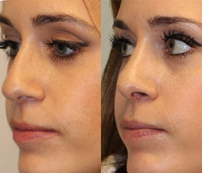 Rhinoplasty Before & After F09