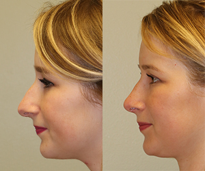 Rhinoplasty Before & After F06