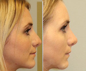 Rhinoplasty Before & After  F08