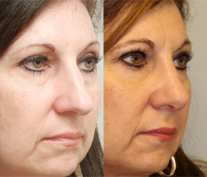 Rhinoplasty Before & After F04