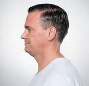 Seattle Kybella expert neck jowl fat difficult area below chin