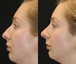 Non-Surgical Rhinoplasty Before & After F01