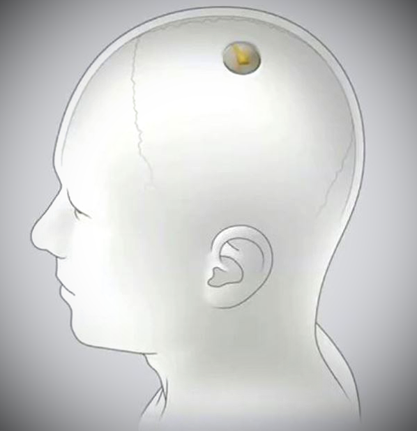 Neuralink in the brain