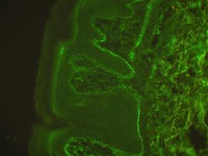 New paper: IgA epidermal transglutaminase ELISA in suspected dermatitis herpetiformis patients