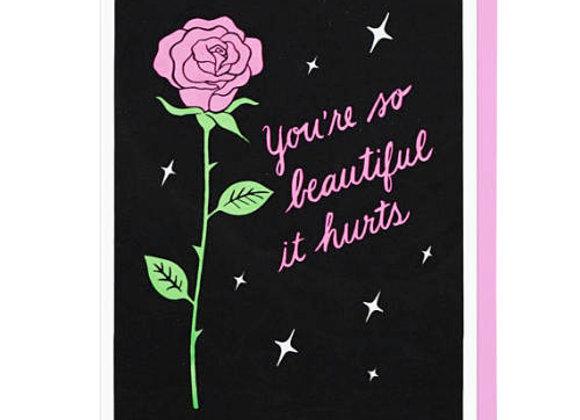 You're So Beautiful It Hurts Card