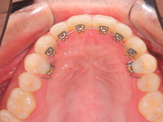 Now you can have braces without anyone knowing!
