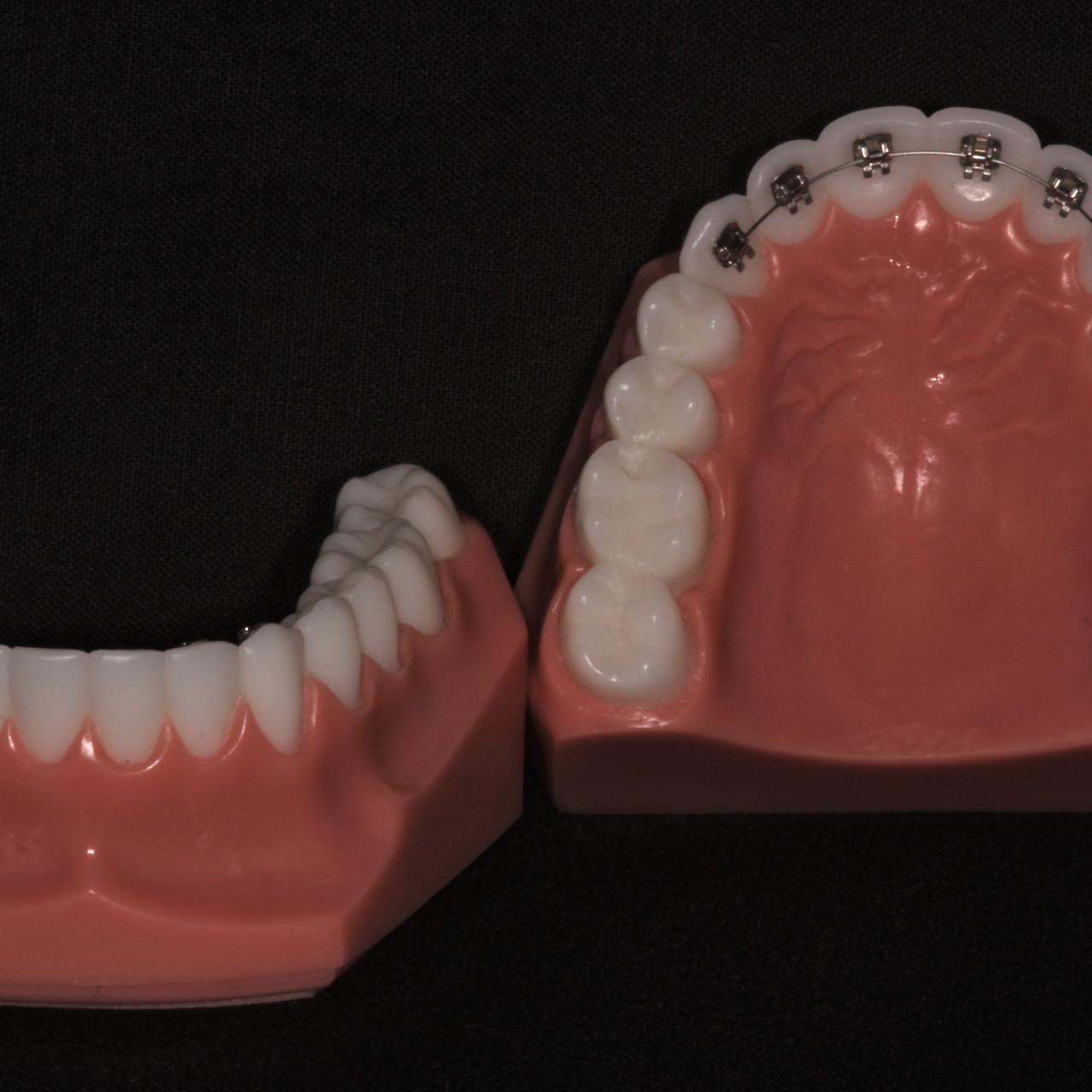 lingual braces blog 3