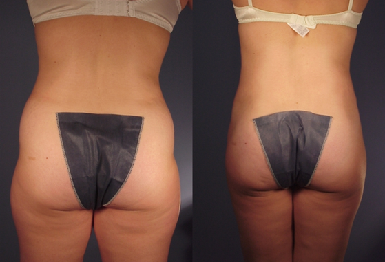 tummy tuck 2.png