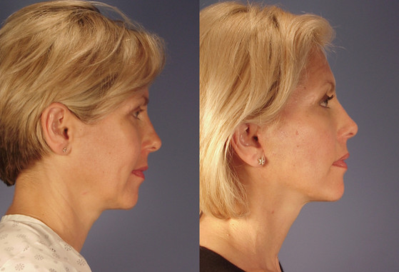 Facelift,   (20090302111022276) 20090303