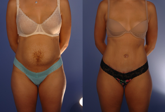tummy tuck 3.png