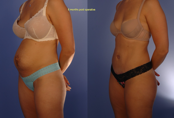 tummy tuck 4.png
