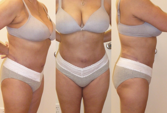 tummy tuck 10.png