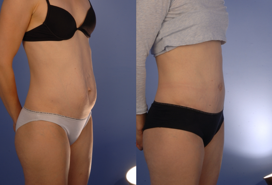 tummy tuck 5.png