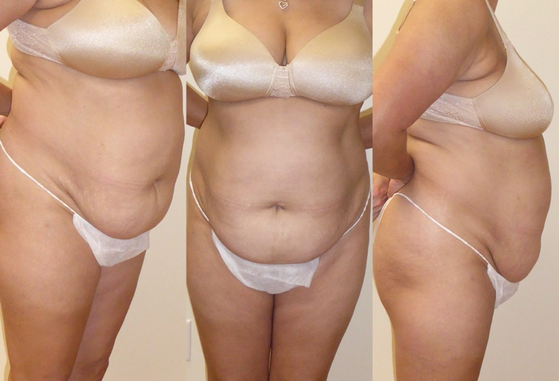 tummy tuck 9.png