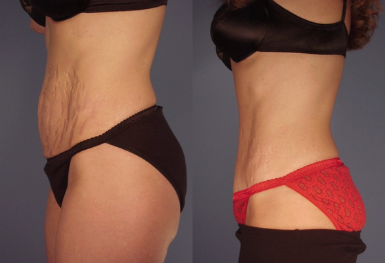 tummy tuck 12.png