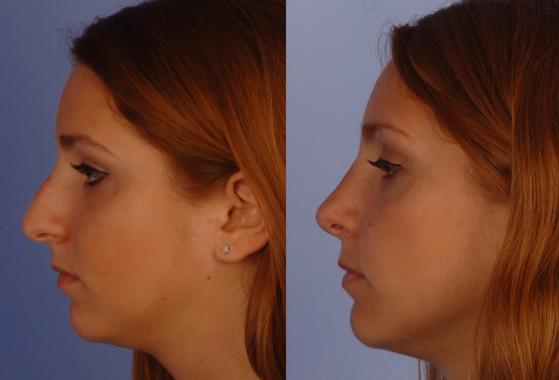 Rhinoplasty,   (20090225114057252) 20120